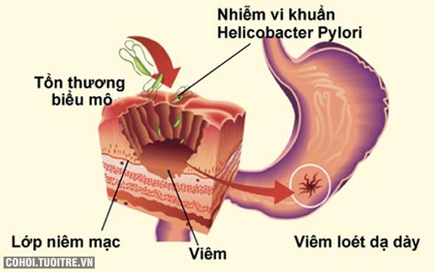 Đau dạ dày lâu ngày có thể dẫn tới ung thư